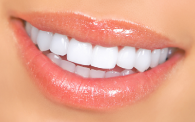 Alpharetta Veneers for that Sparkling Summer Smile