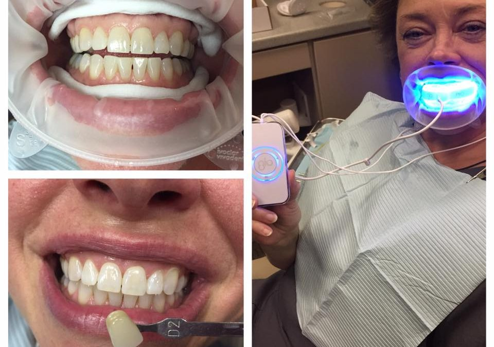 Glo Whitening System Midway Family And Cosmetic Dentistry