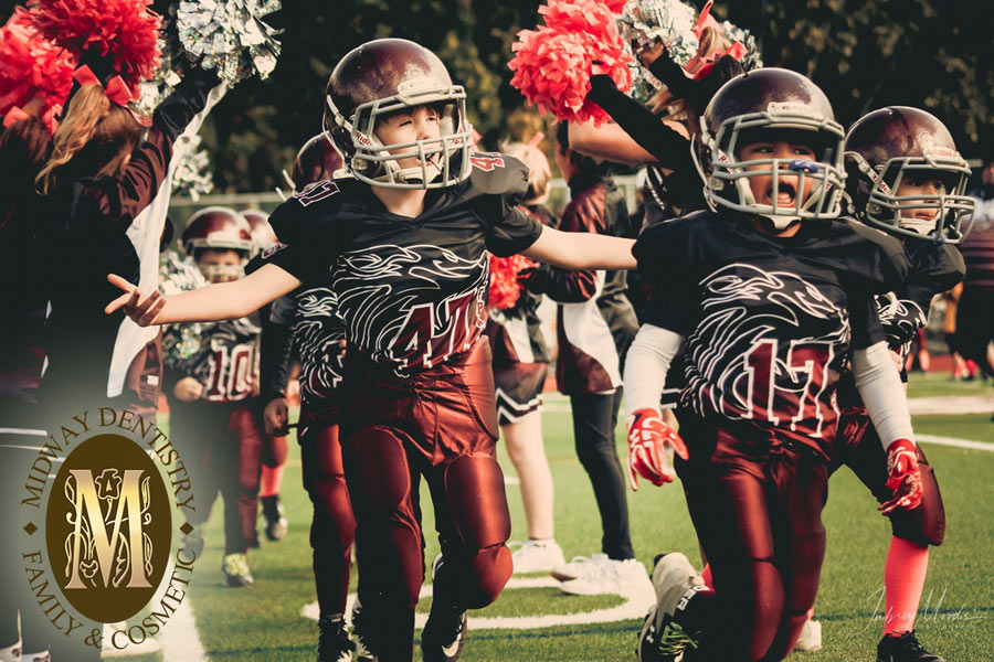 Benefits of Custom Dentist-Fitted Mouthguards