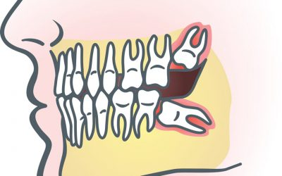 What You Should Know About Wisdom Teeth