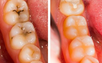 Replacing Dental Fillings: When is it Necessary?