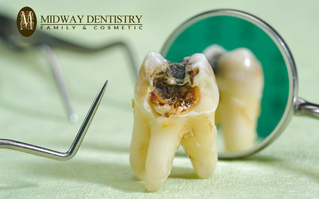 Do I have a Cavity? Cavity Treatment and Prevention