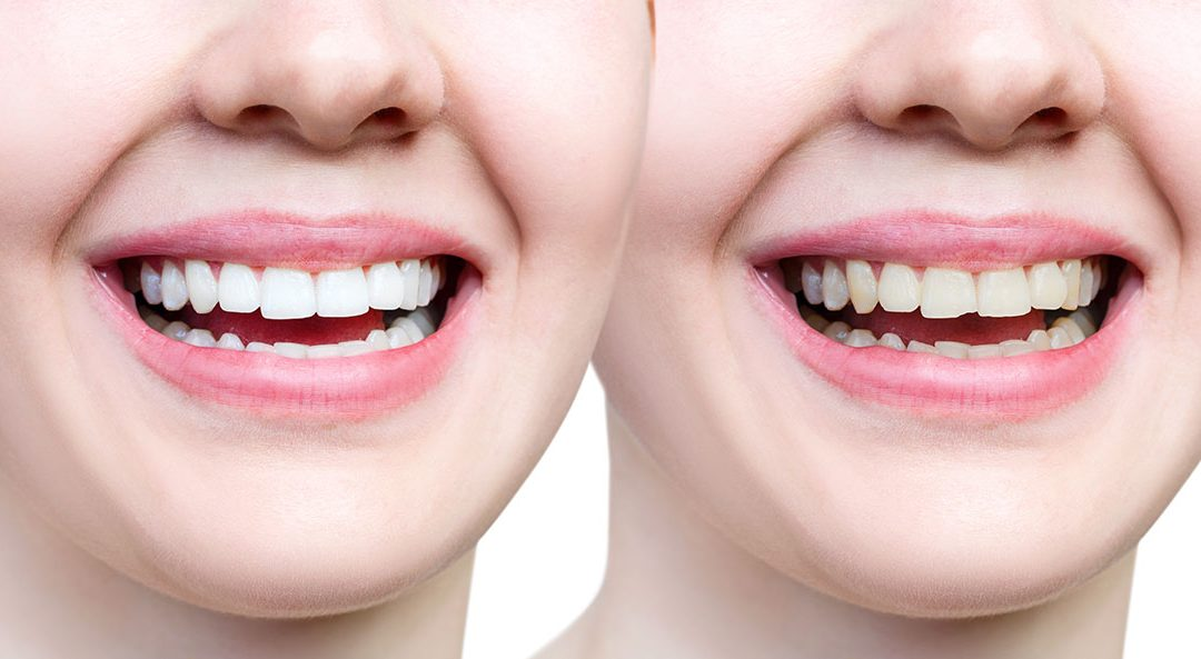Chipped Tooth? Learn about procedures and options